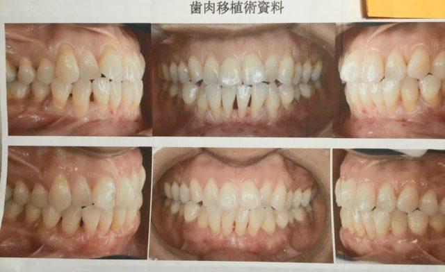 歯肉移植手術